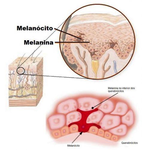 melanócitos e melanina